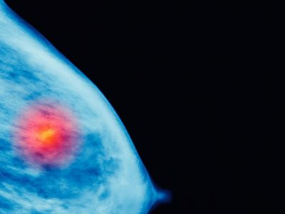 Study: More Breast Cancers Have Been Diagnosed Under The Affordable Care Act