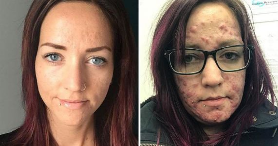 Mum takes to Instagram to share her painful experience of adult acne to remind sufferers they're not alone
