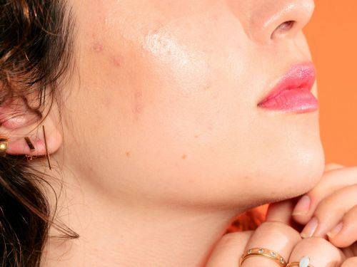"""What Is """"Orange Peel Skin"""" - & How Can You Get Rid Of It?"""