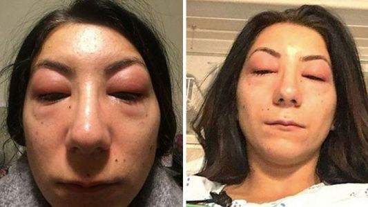 Woman's photos of eyelash extensions gone wrong will remind you to always do a patch test