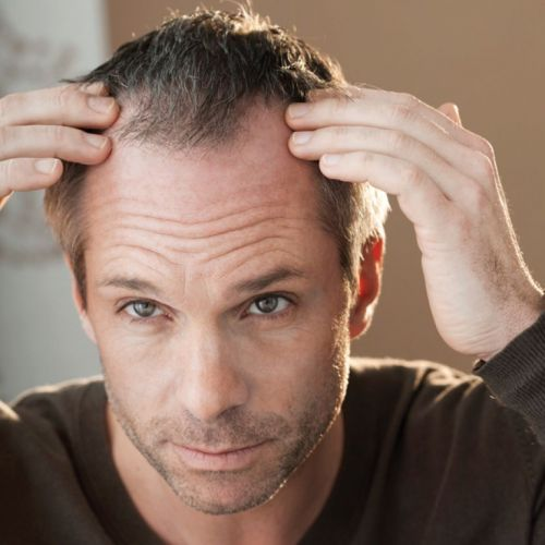 Tips and Products to Help Clients Combat Hair Loss