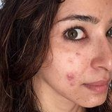 This Dermatologist Took a Photo of Her Acne For an Important Reason