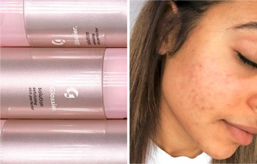 Glossier's new exfoliator Solution for blemish-prone skin is here