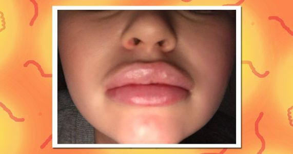 Is getting lip fillers worth the faff?