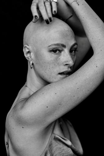 Model Amber Rowan wants to change the conversation about Alopecia