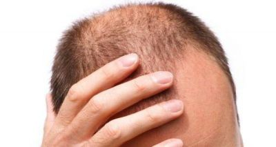 International Men's Health Week - Types of hair loss, identify yours for better treatment