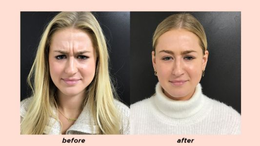 I'm 22 Years Old & I Love Botox-Don't Judge Until You See My Photos