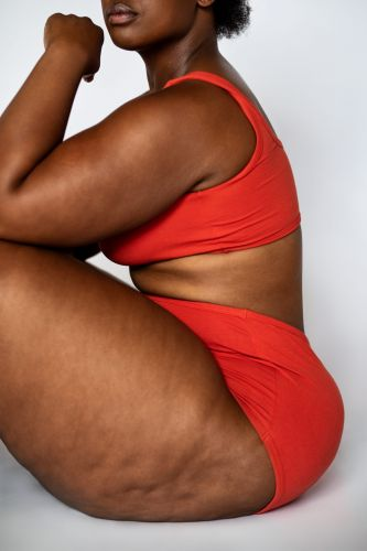 Dermatologist Michelle F. Henry Busts Myths About Cellulite